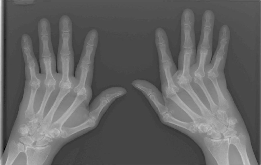 x-ray image of hands