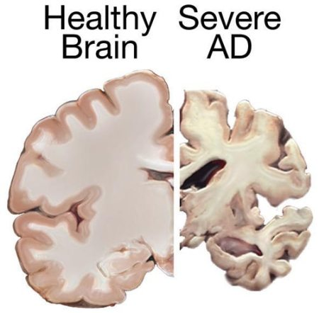 Photo of a cross section of a human brain with the left slide healthy and the right side with severe AD