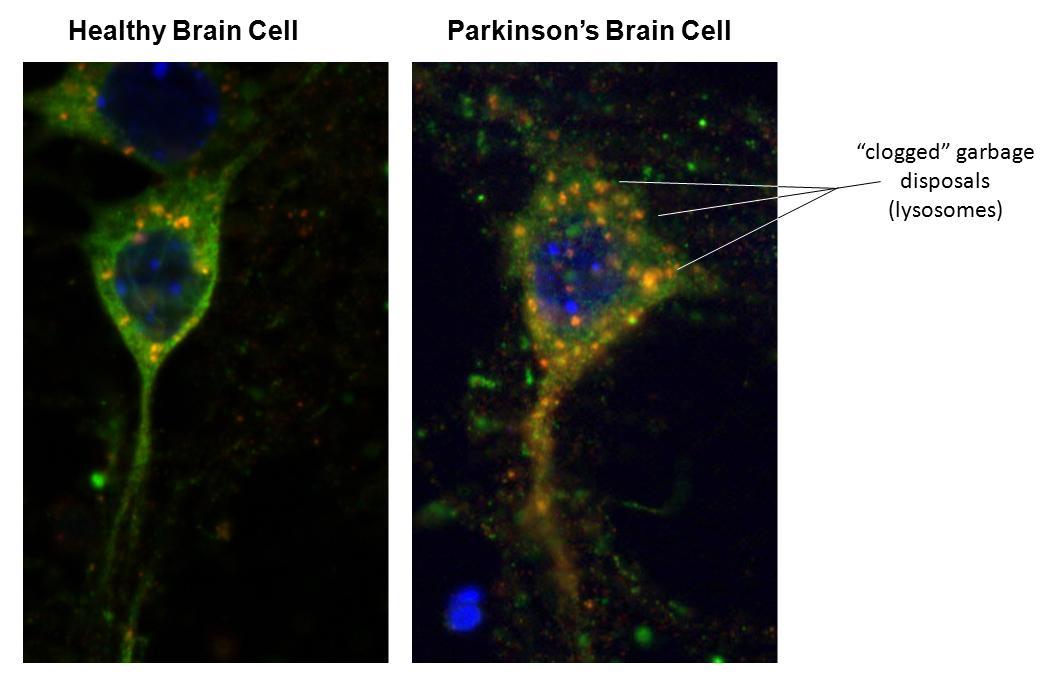 alpha-synuclein | NIH Director's Blog