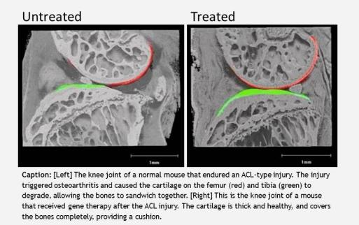 Caption: [Left] The knee joint of a normal mouse that endured an ACL-type injury. The injury triggered osteoarthritis and caused the cartilage on the femur (red) and tibia (green) to degrade, allowing the bones to sandwich together. [Right] This is the knee joint of a mouse that received gene therapy after the ACL injury. The cartilage is thick and healthy, and covers the bones completely, providing a cushion.