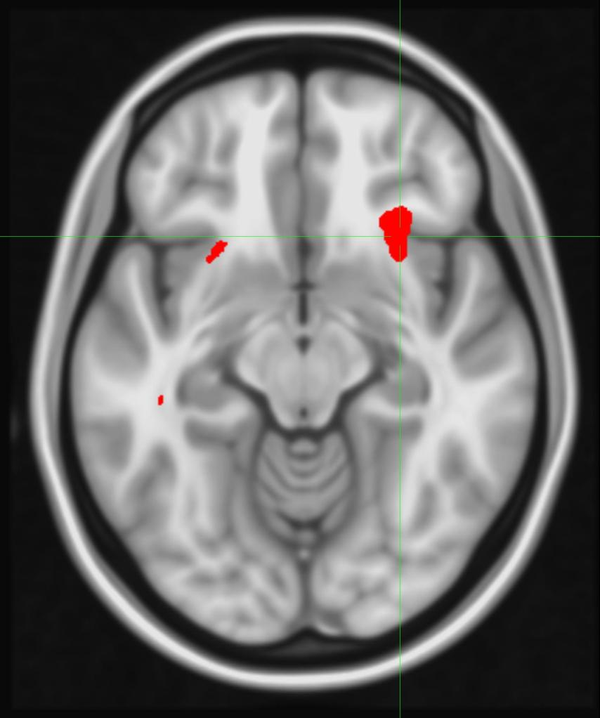 Brain scan showing three red dots, the largest of which is in the cross hairs of two green lines