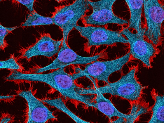 Brightly colored cells