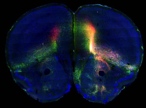 Cross section of a mouse brain