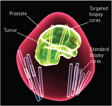3D data map of prostate biopsies