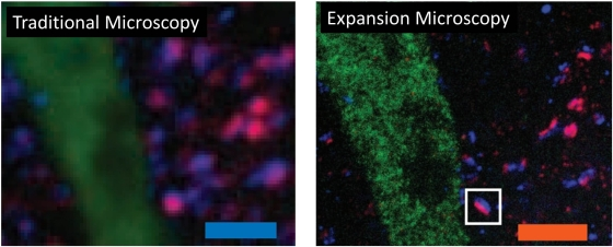 Traditional vs. Expansion Microscopy