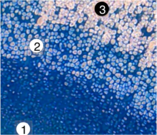 Cartilage and bone formation from stem cells