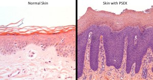 Histology of normal skin compared to skin with PSEK